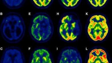 Photo of پیشبینی احتمال خروج افراد از کما با اندازهگیری آسیبهای مغزی