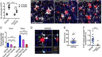 Photo of بینشی نو نسبت به نقش آمیلوئیدهای بتا در آلزایمر