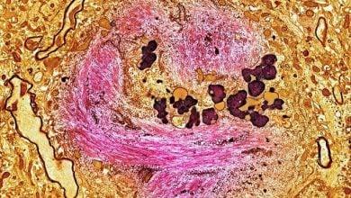 Photo of داروی امید بخش مداوای آلزایمر، سبب کندی 80 درصدی سرعت پیشرفت بیماری می شود