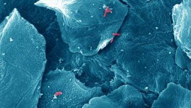 Photo of اتصال کشنده: چگونه باکتری های بیماری زا به موکوس متصل می شوند و از پاکسازی خود ممانعت می کنند؟