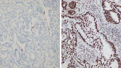 Photo of تحقیقات جدید نقش جهش ها را در سرطان های متاستازی روشن تر کرده است