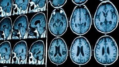 Photo of تکنیک جدید تصویر برداری از مغز در مقیاسهای متعدد