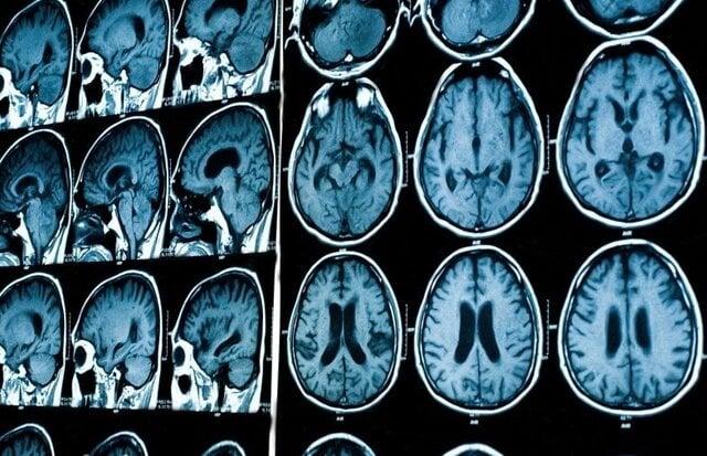 تکنیک جدید تصویر برداری از مغز در مقیاسهای متعدد
