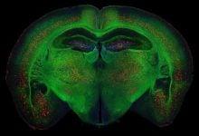 Photo of ایجاد روش های درمانی نوین بیماری آلزایمر با هدف قرار دادن مدارهای عصبی
