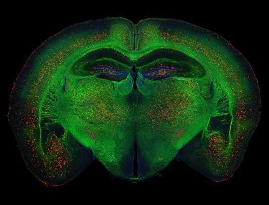 ایجاد روش های درمانی نوین بیماری آلزایمر با هدف قرار دادن مدارهای عصبی