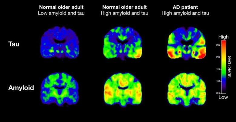 عامل اصلی آلزایمر