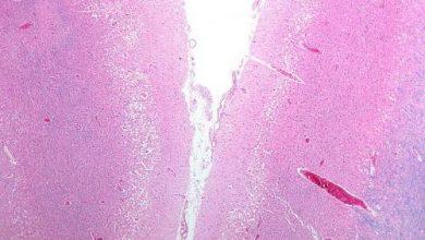 Photo of ترمیم آسیب های سکته مغزی