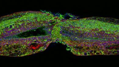 Photo of پروتئینی برای ترمیم آسیب های نخاعی