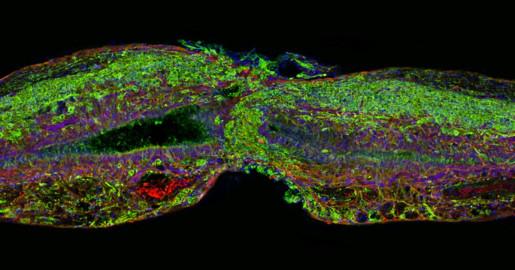 پروتئینی برای ترمیم آسیب های نخاعی