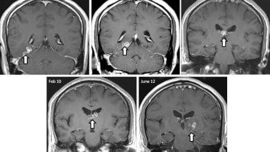 Photo of تعیین توالی ژنوم کرم مغز انسان