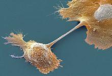 Photo of دارو جدید بیدارکننده سیستم ایمنی علیه کشندهترین نوع سرطان