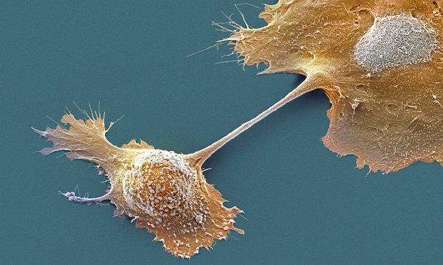 داروی جدیدی موسوم به IMM-101 کشف شده است که سیستم ایمنی را علیه سرطان لوزالمعده بیدار میکند، بدون اینکه اثرات جانبی در پی داشته باشد. کشف این دارو به عنوان یک ابزار قدرتمند علیه پیچیدهترین شکل سرطان امید به کشف درمان را بالا برده است.
