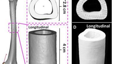 Photo of ساخت داربست استخوانی با ساختار جدید، درمان سریع صدمات بزرگ