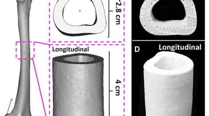 درمان صدمات استخوان با ساختار داربست سلولی