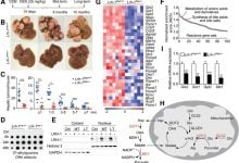 Photo of کاهش تکثیر در سلول های سرطانی کبد با مسدود کردن متابولیسم آنها