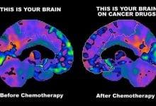 Photo of ادامه عارضه Chemo-Brain تا ماه ها بعد از شیمی درمانی