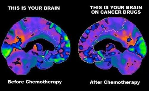 عارضهی کمتر شناخته شده chemo brain که تا به امروز بهعنوان اثرات جانبی شیمی درمانی در نظر گرفته نمی شد، تأثیر مستقیمی بر زندگی افراد مبتلا به سرطان پستان دارد. لغزش در هوشیاری ذهن و حافظه مبهم و تیره وتار که درست بعد از شیمی درمانی اتفاق می افتد شاهدی بر رخداد chemo brain است.