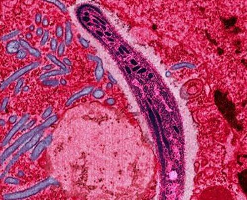 کودکان آفریقایی آسیبپذیرترین قشر نسبت به انگل مالاریا هستند، بهطوریکه تقریباً هر 5 ثانیه یک مورد مرگ در اثر بیماری گزارش میشود. طبق آمار سازمان بهداشت جهانی، تنها در سال 2015 حدود 214 میلیون فقره بیماری و 438 هزار تا 730 هزار مرگ در اثر مالاریا به وقوع پیوسته است. همهی اینها در حالی اتفاق میافتد که سالانه میلیاردها دلار برای جلوگیری از مالاریا سرمایهگذاری میشود.