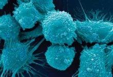 Photo of رشد سلول های سرطانی با وجود هرج و مرج ژنتیکی