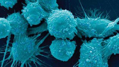 رشد سلول های سرطانی با وجود هرج و مرج ژنتیکی - زیست فناوری - زیست فن