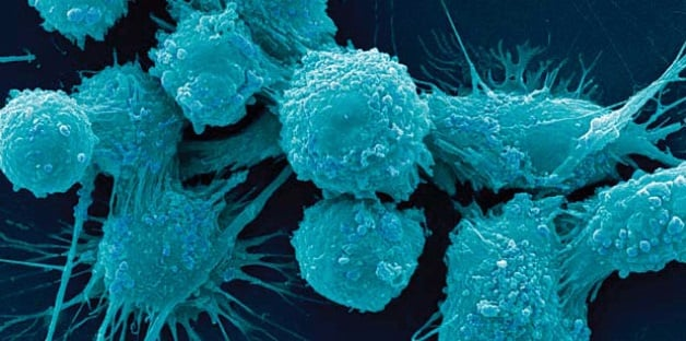 دانشمندان متوجه شدند که علیرغم آسیبهای قابل توجهی که به ساختار و تعداد کروموزومها در سلولهای سرطانی وارد میشود، باز هم تومورها قادر به رشد هستند. سلولهای سالم به گونهای برنامه ریزی شدهاند تا در صورت وجود خطاهای بزرگ وارد مرحله پیری شوند، ولی سلول های سرطانی با وجود ناهنجاری باز هم به رشد خود ادامه میدهند. با گذشت زمان ایجاد تغییرات ژنتیکی بیشتر به آن ها اجازه میدهد تا علاوه بر رشد و تکثیر، در بدن منتشر شوند؛ همچنین جهشهای ایجاد کننده مقاومت دارویی را نیز کسب میکنند. اما این هرج و مرج ژنتیکی میتواند به صورت معکوس عمل کند و سلولهای سرطانی را به مرحله پیری و مرگ وارد کند.