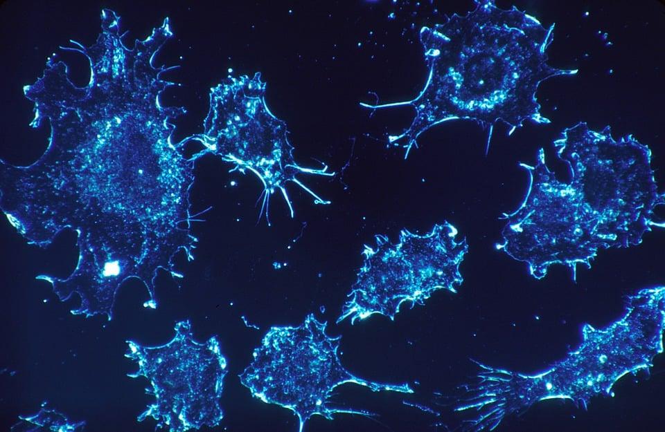 وجود سلول های دندرتیک در تومورهای در حال رشد