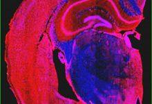 Photo of ترکیبی سنتزی با قابلیت احتمالی رفع ضایعات مغزی آغازگر آلزایمر