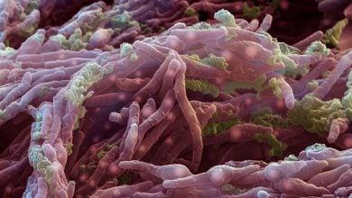 Photo of سل دوباره حساس به آنتیبیوتیک میشود
