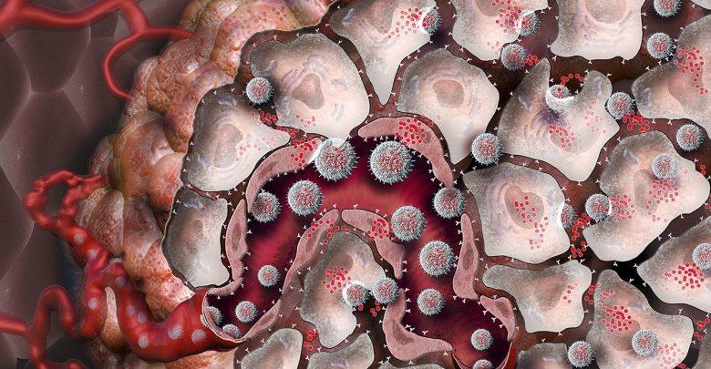 یک مطالعهی جدید نشان میدهد که نانوذرات میتوانند به سیستم ایمنی بدن کمک کنند تا نه تنها سلولهای سرطانی هدف قرار گرفته، که سلولهای سرطانی که در بقیه قسمتهای بدن در اثر متاستاز حضور دارند را نابود کند.
