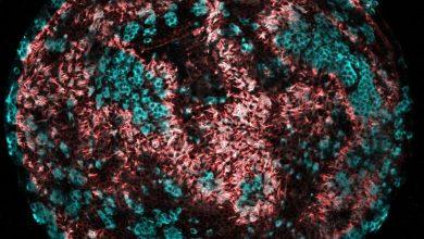 Photo of داروی جدید برای بازسازی سلول های مو شنوایی: کمک به درمان کم شنوایی