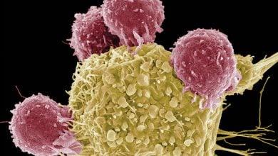 �واکسن شخصی سازی شده علیه تومور برای کنترل سرطان - اخبار زیست فناوری