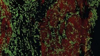 نقش ماکروفاژها در ایجاد ضربان قلب - اخبار زیست فناوری