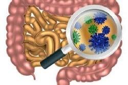 Photo of شناسایی باکتری التهاب روده در موش