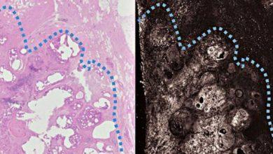 روشی نوین برای خارج کردن تمام تومور سرطانی تنها با یک عمل جراحی