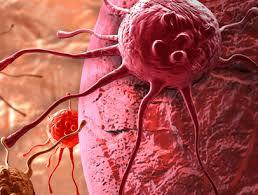 Photo of استفاده زود هنگام Zytiga بقا سرطان پروستات را بهبود می بخشد