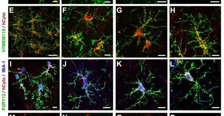 ایجاد سلولهای مغزی توسط سلولهای بنیادی پوست - مجله زیست فن