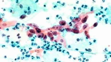 Photo of توقف گسترش سرطان