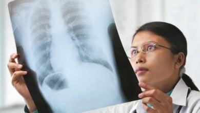 Photo of کشف اولین دارو در مقابله با سرطان مزوتلیوما