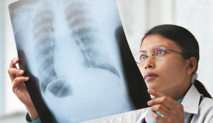 کشف اولین دارو در مقابله با سرطان مزوتلیوما - اخبار زیست فناوری