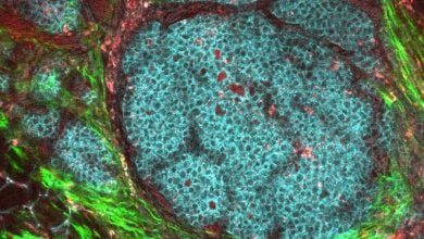 Photo of درمان جدید برای سرطان پستان