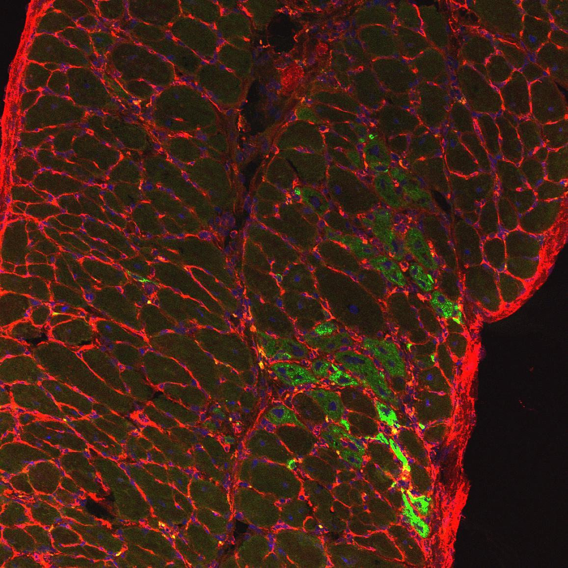 روشهای درمانی نوین برای حل مشکل دیستروفی عضلانی - اخبار زیست فناوری