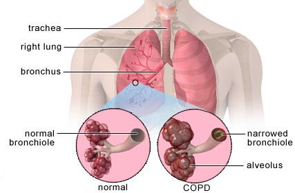 COPD can result in structural changes that affect the lung and microbiome - اخبار زیست فن
