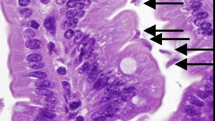 Co-infection with two common gut pathogens worsens malnutrition in mice - اخبار زیست فن