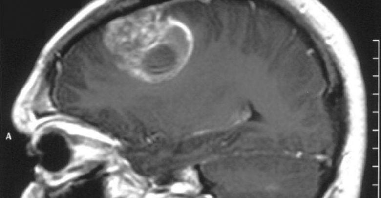 DNA becomes primary target in fight against glioblastoma - اخبار زیست فن