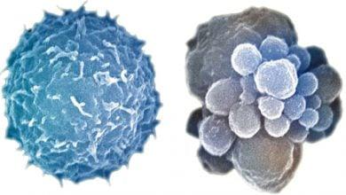 Photo of چگونگی مرگ سلولی