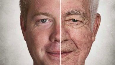 Photo of جلوگیری از پیری زودرس