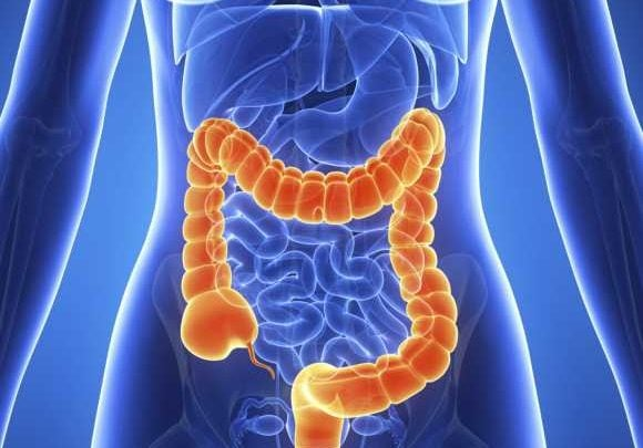 Rapid test for early detection of colon cancer introduced - اخبار زیست فناوری