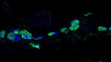 Photo of تشدید پیری با تغییرات ریتم شبانهروزی سلولهای بنیادی
