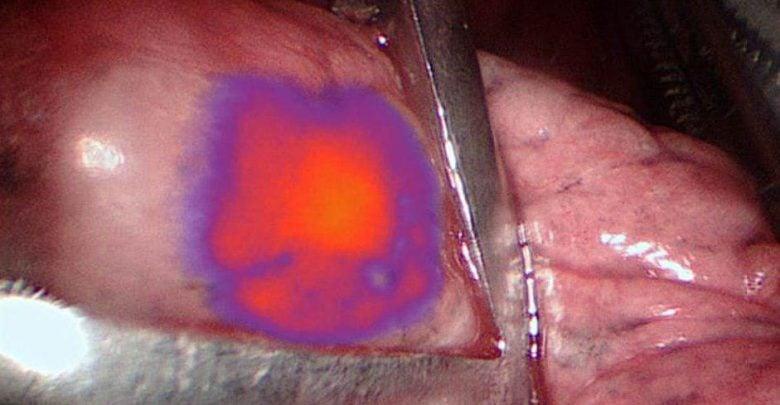 درخشان نمودن تومور برای حذف بهتر در عملهای جراحی - اخبار زیست فناوری