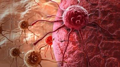 Photo of درمانی جدید برای بیماران مبتلابه تومورهای جامد پیشرفته